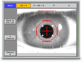 OCULUS Optikgeräte GmbH Автоматический рефрактокератометр с функцией пахиметрии PARK 1
